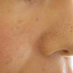 鼻ニキビに効果のあるニキビケア商品最新ランキング