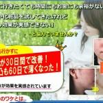 自宅で安全にできる!ニキビ&ニキビ痕改善法