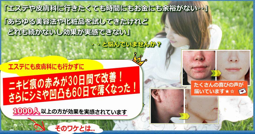 自宅で安全にできる!ニキビ&ニキビ痕改善法1